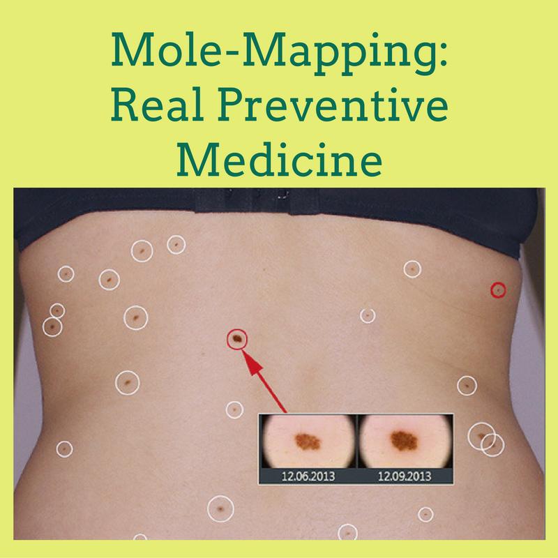 Mole-Mapping